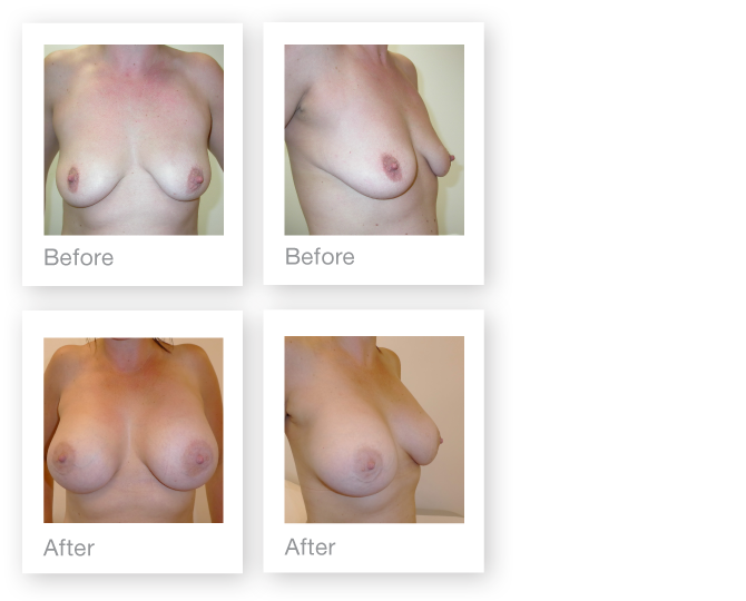 David Oliver Breast Augmentation Surgery before & after June 2017