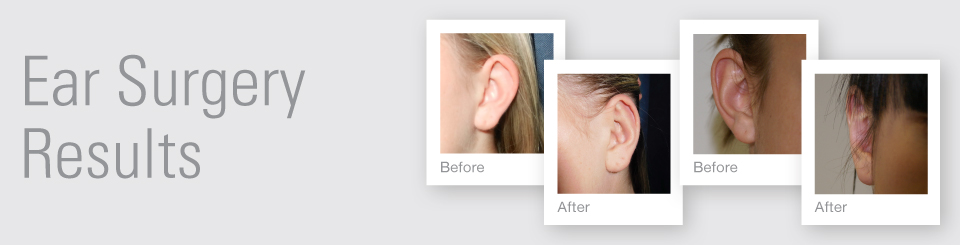 Ear surgery otoplasty before after surgery results Exeter Torbay Devon Guernsey by David Oliver expert Breast Surgeon