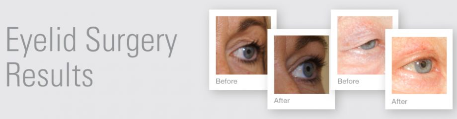 Eyelid Surgery before & after