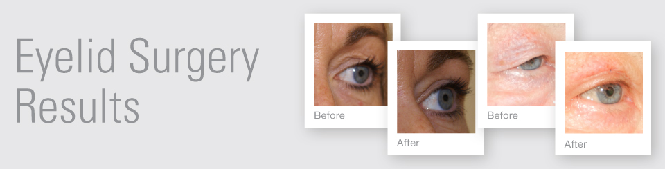 Eye surgery blepharoplasty before after surgery results Exeter Torbay Devon Guernsey by David Oliver expert Breast Surgeon