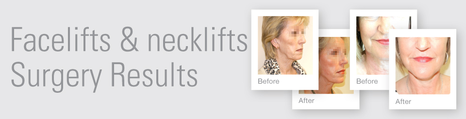 Facelift necklift before after surgery results Exeter Torbay Devon Guernsey by David Oliver expert Breast Surgeon