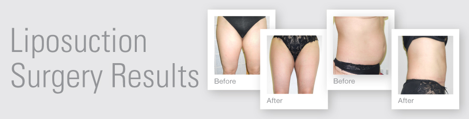 Liposuction before after surgery results Exeter Torbay Devon Guernsey by David Oliver expert Breast Surgeon