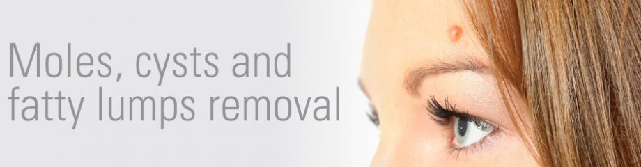 Mr Oliver also offers moles, cysts & lipoma removal | David Oliver