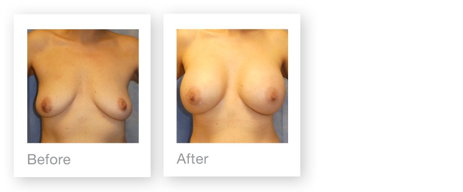 David Oliver Breast augmentation surgery 2 before & after July 2017