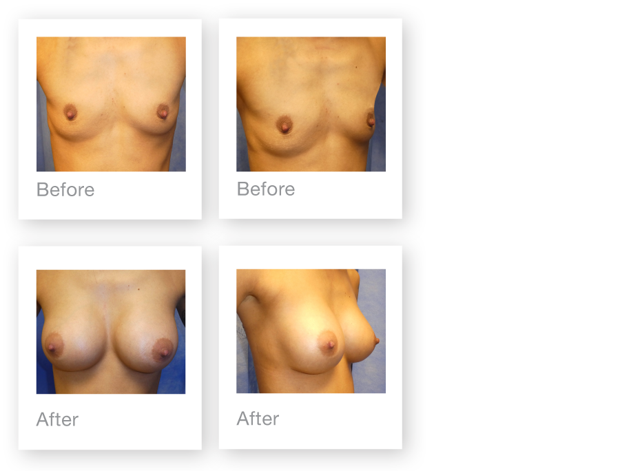 David Oliver Breast augmentation surgery before & after July 2017