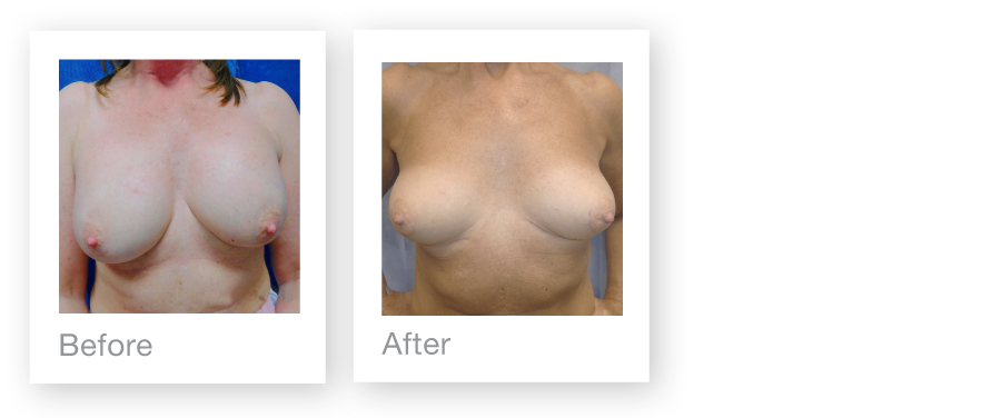 David Oliver breast implant removal & mastopexy surgery before & after July 2017