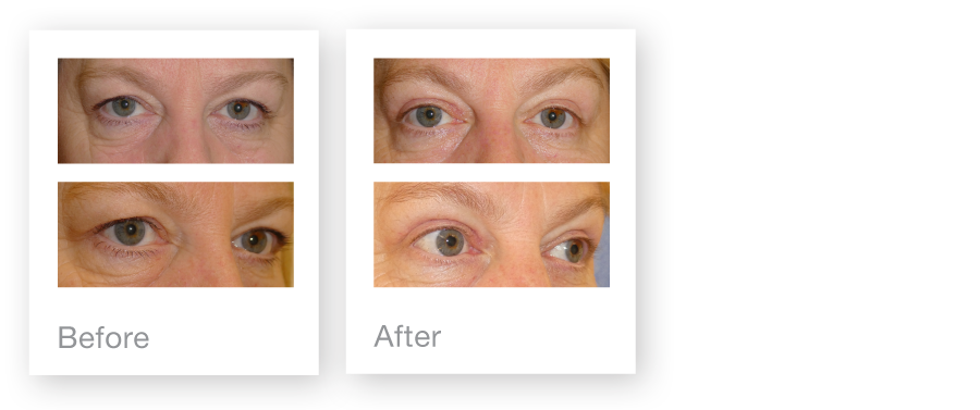 David Oliver upper blepharoplasty surgery before & after July 2017