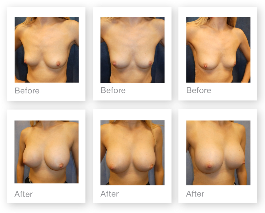 David Oliver Surgery Breast Augmentation surgery before & after September 2017