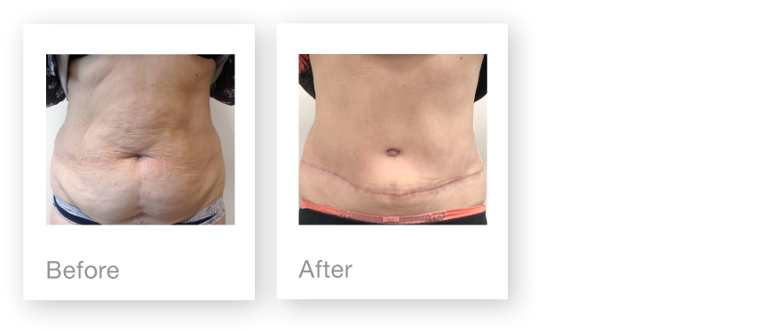 David Oliver Surgery Abdominoplasty surgery before & after end January 2018