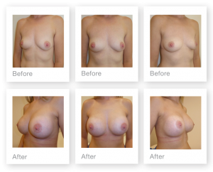 David Oliver Surgery Breast Augmentation before & after January 2018