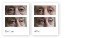 David Oliver Cosmetic Surgeon Exeter Blepharoplasty before & after surgery