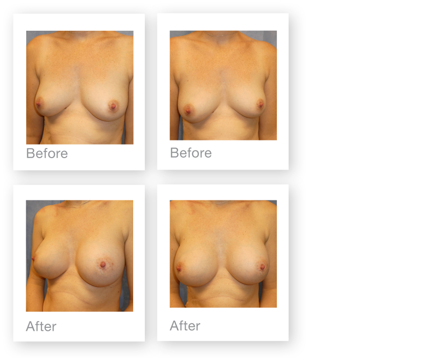 David Oliver Cosmetic Surgeon Exeter breast augmentation before & after surgery