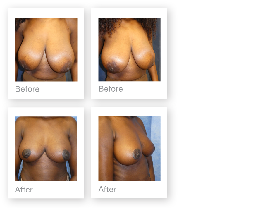 Breast Reduction by David Oliver, cosmetic surgeon before & after results June 2018