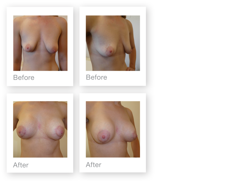David Oliver Surgery two stage Breast Uplift (mastopexy) Breast Augmentation June 2018