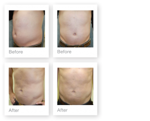 David Oliver Cosmetic Surgery Liposuction procedure June 2018 Exeter