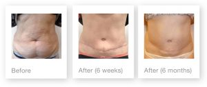 David Oliver Cosmetic Surgery Abdominoplasty before after 6 weeks & 6 months post op