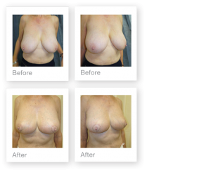 David Oliver Surgery Breast Reduction Surgeon before & after result August 2018 Devon