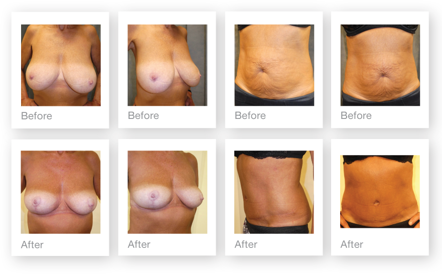 David Oliver Surgery Breast Reduction Mastopexy & Abdominoplasty Result Before After September 2018
