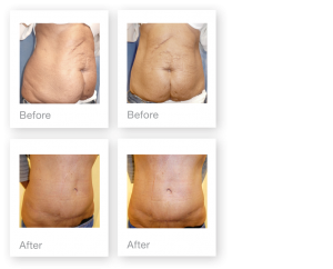 David Oliver Abdominoplasty & Liposuction Surgery before and after result Devon November 2018