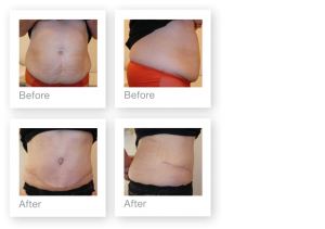 David Oliver Abdominoplasty & Liposuction Surgery results before & after Devon