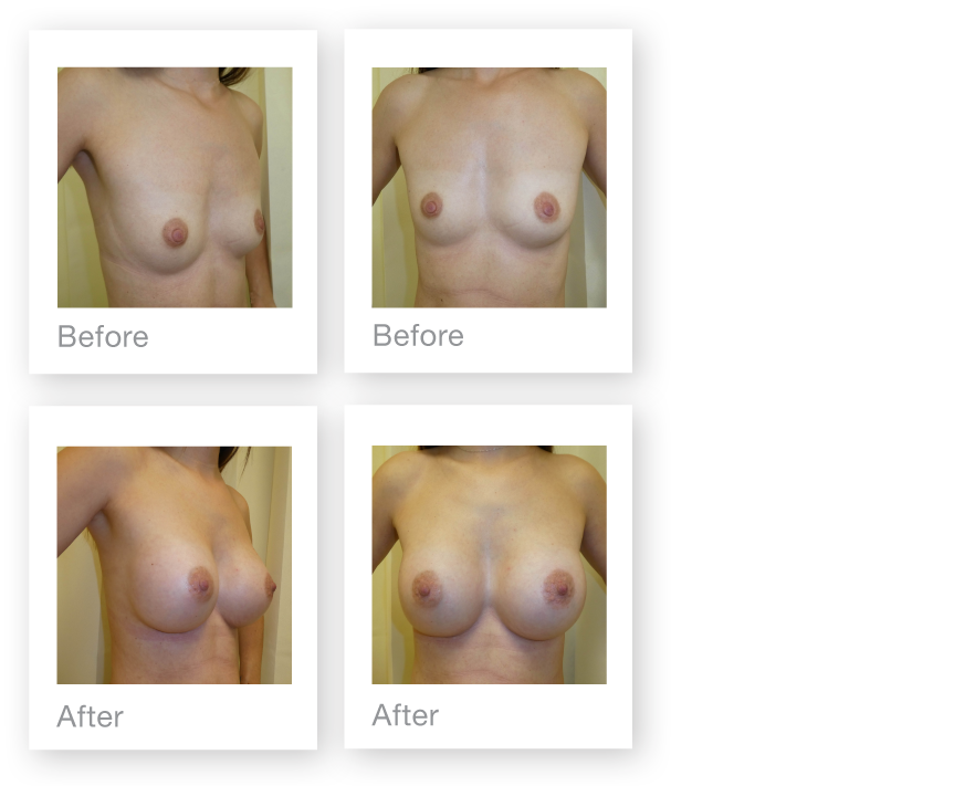 David Oliver Bi-lateral Breast Augmentation Surgery before and after result Devon November 2018