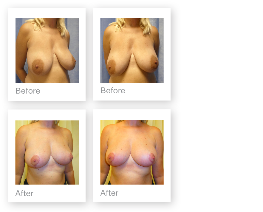 David Oliver Bi-lateral Breast Reduction Surgery before and after result Devon November 2018