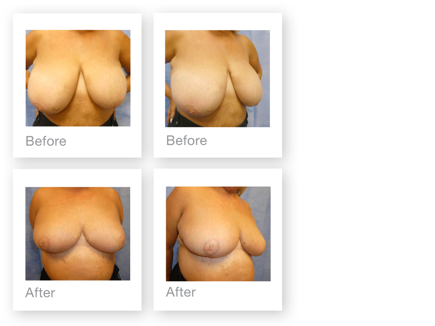 David Oliver Breast Reduction & Liposuction Surgery before & after results Devon