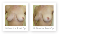 David Oliver Mastopexy Breast Uplift Surgery result 18 months post op Devon