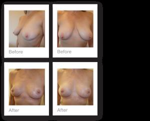 David Oliver Mastopexy Breast Uplift results Devon December 2018