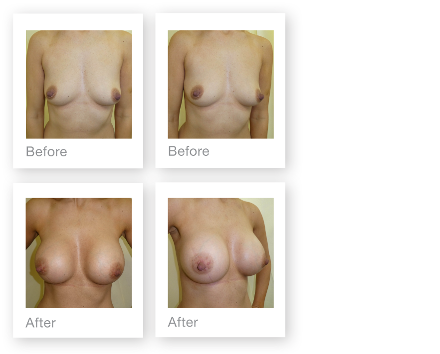 David Oliver Breast Augmentation surgery result Devon Feb 2019