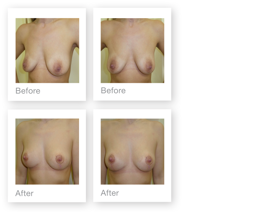 David Oliver Mastopexy Breast Uplift result Feb 2019