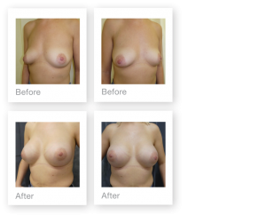 David Oliver Breast Enlargement Surgery Before & after Results March 2019