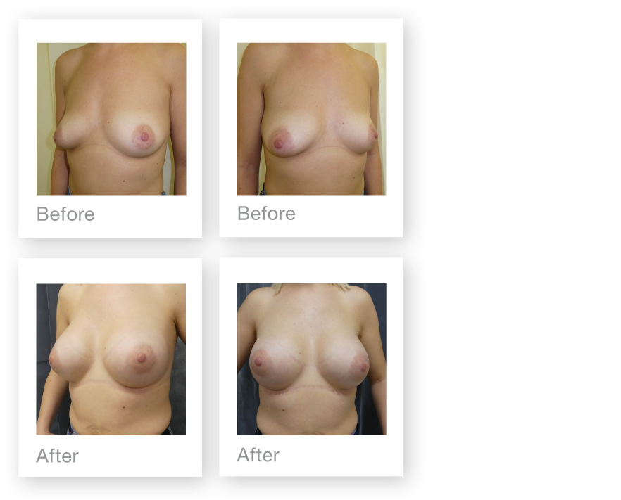 David Oliver Breast Augmentation surgery result Devon March 2019
