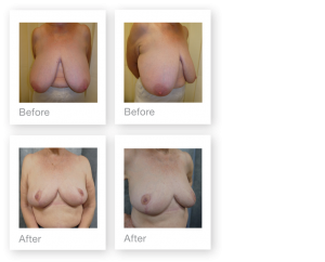 David Oliver Breast Reduction Surgery Before & after Results March 2019