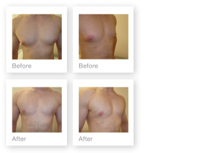 David Oliver Cosmetic Surgeon Male Breast Gynaecomastia before & after result March 2019