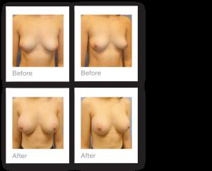 David Oliver Breast Augmentation Surgery Before & after Results Devon April 2019