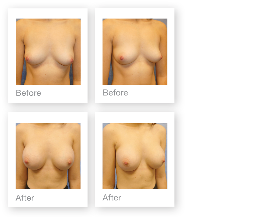 David Oliver Breast Augmentation Surgery Before & after Results Devon April 2019