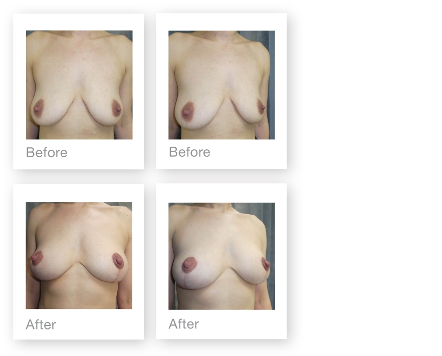 David Oliver Breast Uplift mastopexy Before & after Results April 2019