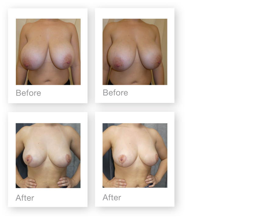 David Oliver Bilateral Breast Reduction surgery results before & after June 2019