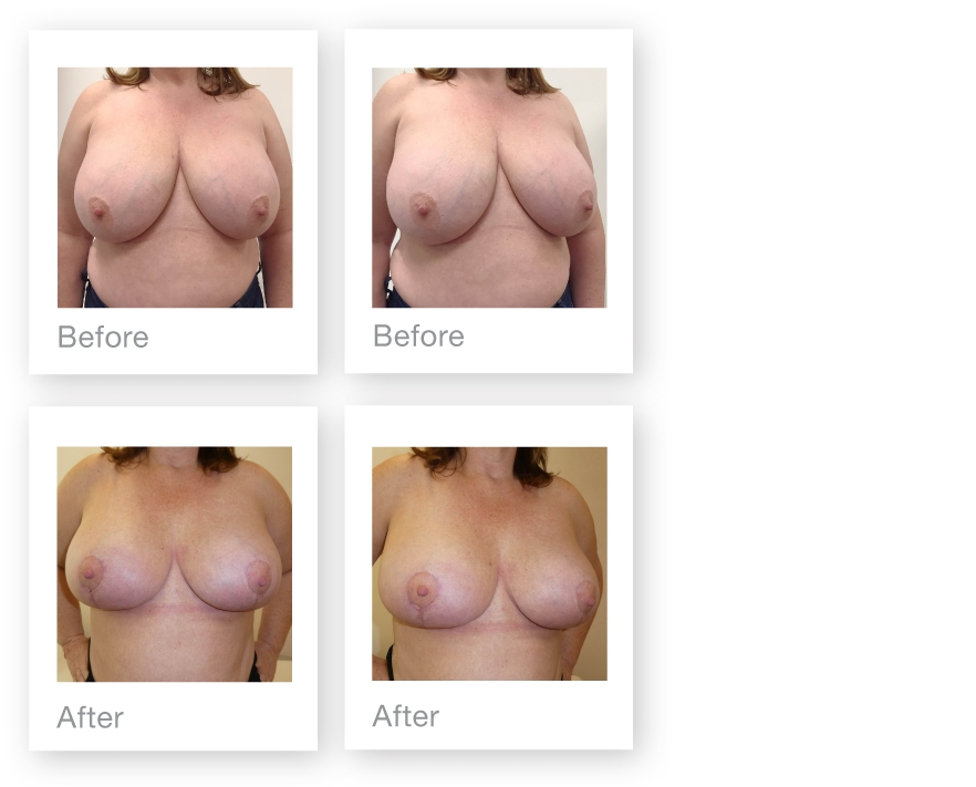David Oliver Breast implant removal and breast uplift before & after surgery June 2019