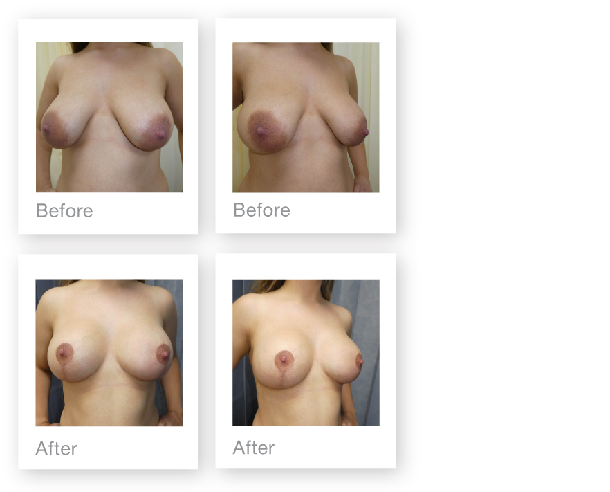David Oliver Mastopexy Breast Uplift surgery results before & after June 2019