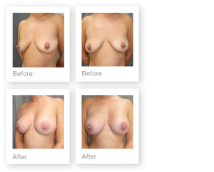 David Oliver breast augmentation before & after surgery results Devon in August 2019