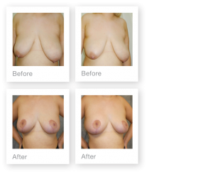 David Oliver Breast Mastopexy & Breast Reduction surgery results before & after September 2019