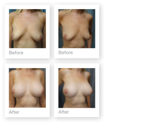 David Oliver Devon Breast Augmentation Surgery Before & After Result October 2019