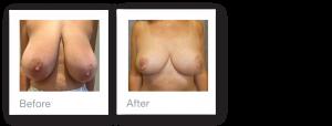David Oliver Devon Breast Reduction Before & After Result October 2019
