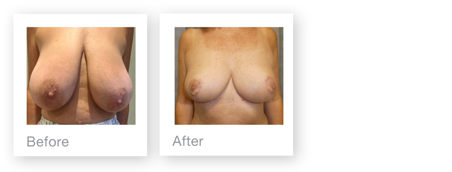 David Oliver Devon Breast Reduction Before & After Result October 2019