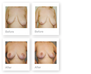 David Oliver Devon Breast Reduction & Mastopexy Surgery Before & After Result October 2019