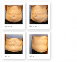 David Oliver Devon Abdominoplasty with Liposuction Surgery Before & After Result December 2019