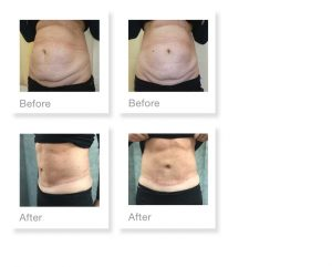David Oliver Abdominplasty & Liposuction Before & After Surgery January 2020
