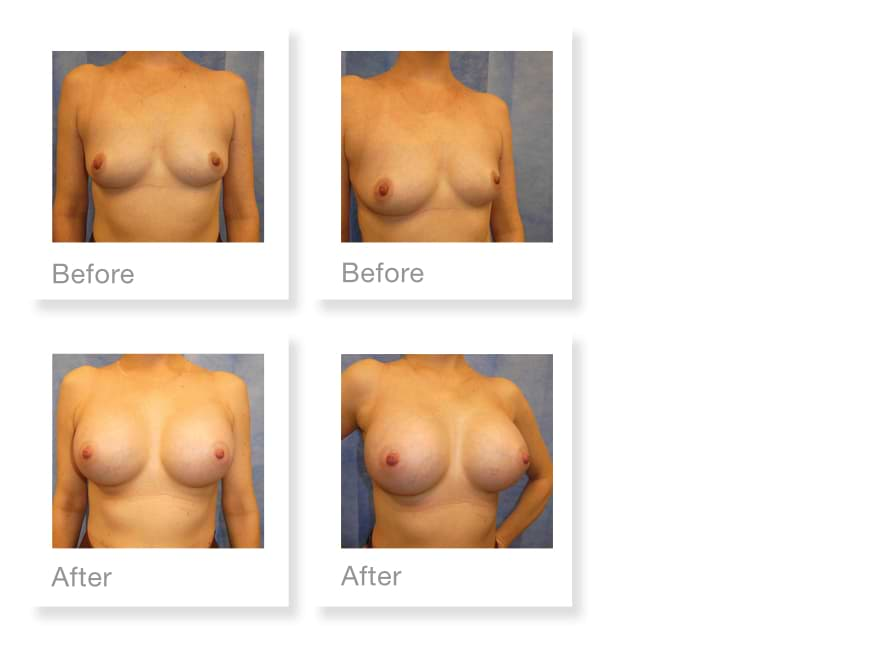 David Oliver Before & After Dual Plane Breast Augmentation Surgery Jan 2020